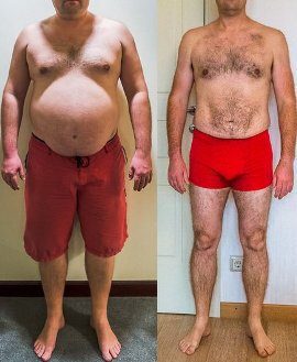 Before and after using Dietonus 2