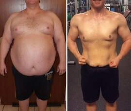 Before and after using Dietonus 3